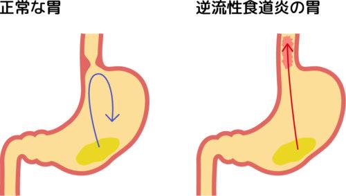 Reflux esophagitis